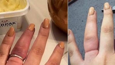 Megan com e sem o anel de noivado - Foto: Reprodução/Instagram