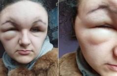 A cabeça de Georgina dobrou de tamanho - Foto: Reprodução/Facebook(Georgina Keeley Paraskeva)