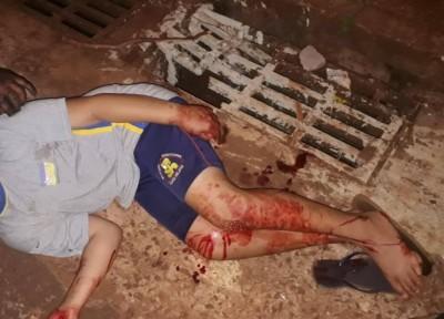 O menino levou 10 pontos no joelho (Foto: divulgação/94FM)