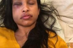 Jovem passou por cirurgia que durou três horas - Foto: Reprodução redes sociais
