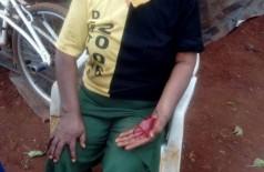 A mãe foi levada ao Hospital da Missão Caiuá com hematomas pelo corpo e lesões no rosto. Foto: divulgação