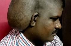 Tumor cerebral em indiano de 31 anos Foto: Reprodução/Twitter