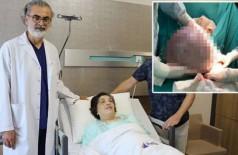 Sunay Eyigül após a cirurgia para a retirada de cisto de 10kg Foto: Reprodução/DHA