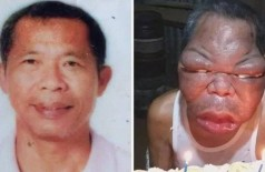 Romulo Pilapil antes e depois do quadro severo de sinusite Foto: Reprodução