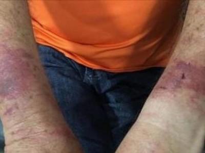 Vítima ficou com os braços machucados que foram amarrados pelos bandidos (Foto: Sigo News)