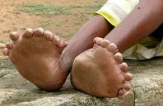 Indiana tem 19 dedos nos pés (Foto: Reprodução)