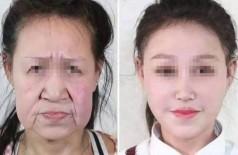 Adolescente de 15 anos tinha envelhecimento precoce - Foto: Shenyang Sunline Plastic Surgery Hospital