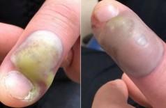 Paciente operada de emergência por causa do vício de roer as unhas - Foto: Reprodução/Facebook