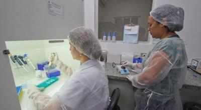 Laboratório Central de Mato Grosso do Sul realiza exames (Foto: Divulgação/SES)
