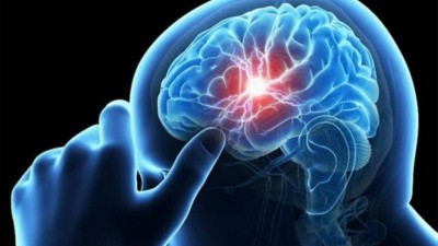 Acidente vascular cerebral (imagem meramente ilustrativa) Foto: Reuters