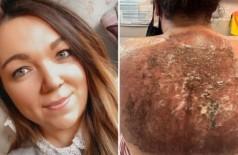 Danielle Fitzsimons exibe queimadura de sol nas costas (Foto: Reprodução/The Sun)