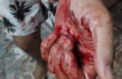 Dono do motel foi esfaqueado na mão esquerda; Foto: Adilson Domingos