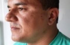 Vereador Edicarlos alega ter sido agredido no rosto, e diz que apenas revidou com um soco ()