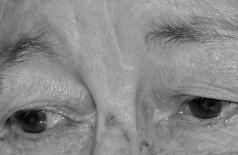 Idosa de 86 anos é agredida com várias coronhadas na cabeça durante roubo